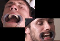 Cheek Retractor Dental Mouth Gag Image 2