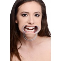 Cheek Retractor Dental Mouth Gag Image 3